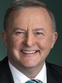 Photo of Anthony Albanese